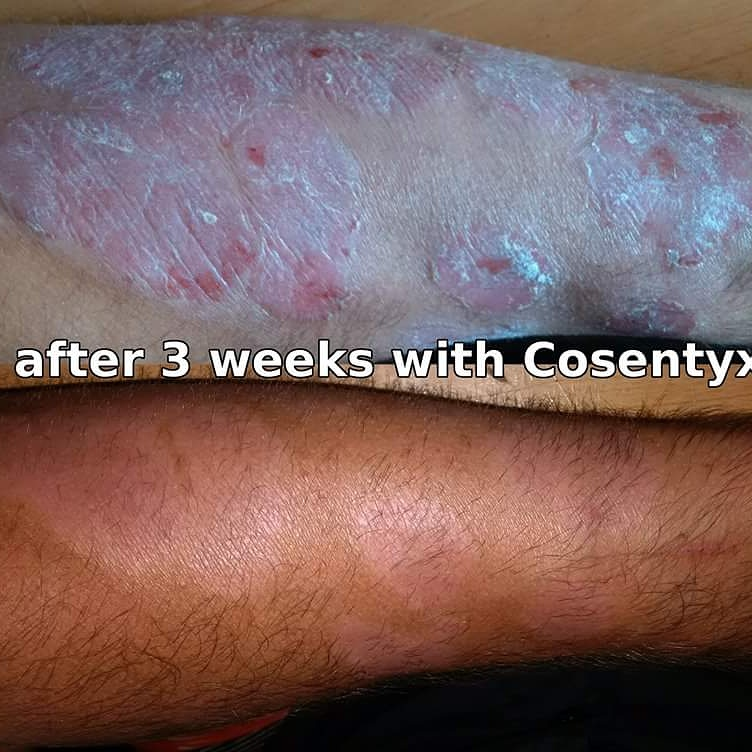 Cosentyx Side Effects Overcoming Psoriasis