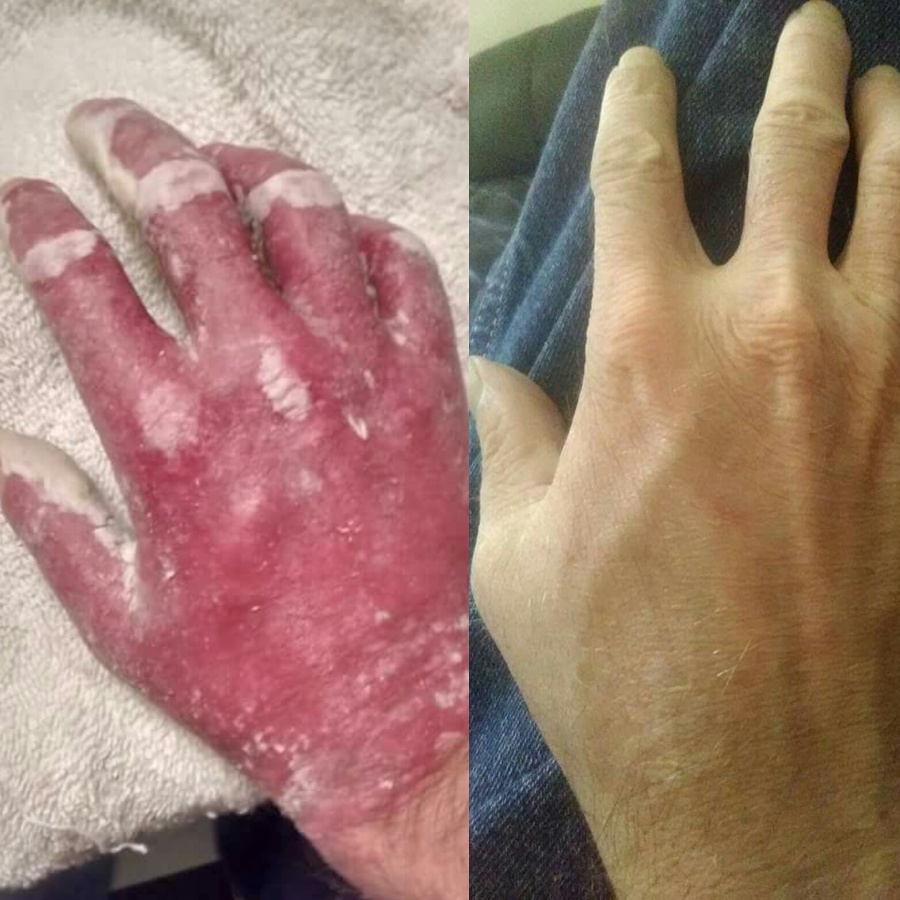 Overcoming Psoriasis Psoriatic Arthritis